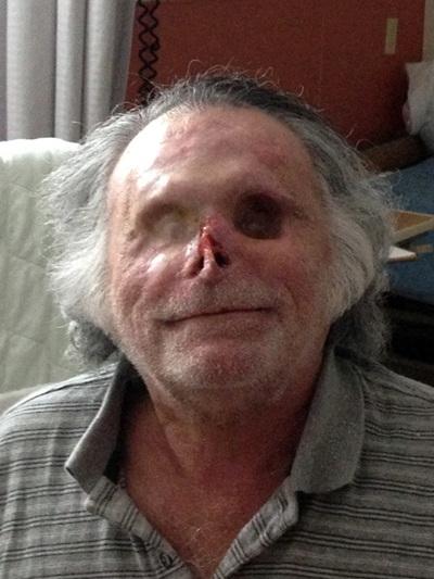 Ronald Poppo, víctima del ataque despiadado del llamado caníbal de Miami, se recupera un año después de sus heridas en el Jackson Health System de Miami.   EFE