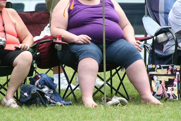 Mujeres obesas Obesidad sobrepeso
