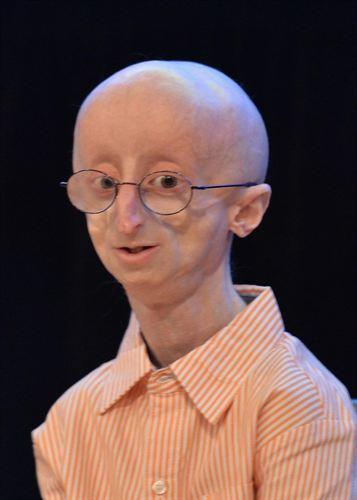 Niño con esperanza de vida de 13 años por enfermedad