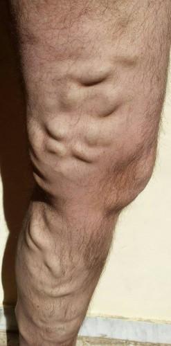 Estado actual de las varices en la pierna izquierda de Vicente. / DA