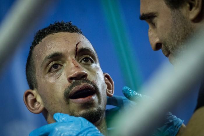 Chahidi es atendido por el árbitro Josafat Marrero tras sufrir un feo corte en su rostro. / ANDRÉS GUTIÉRREZ