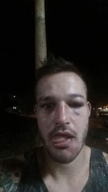 Así acabó el rostro de Aitor después del combate con Soe Lin Oo, el birmano, por su parte, necesitó de 15 puntos de sutura en una de las tres heridas que se llevó en la cara. / DA